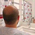 balding men